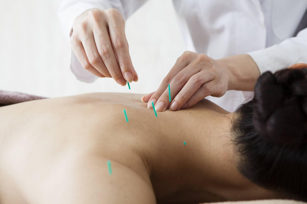 Women who are the back and acupuncture treatment at salon